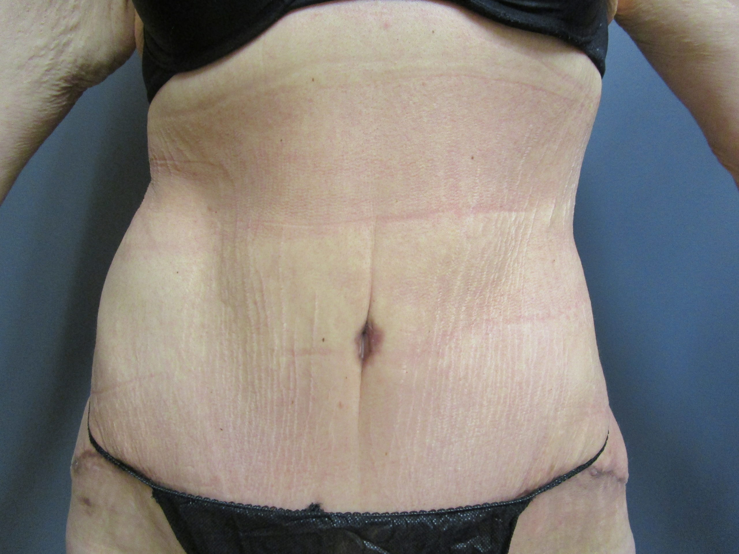 after panniculectomy and liposuction