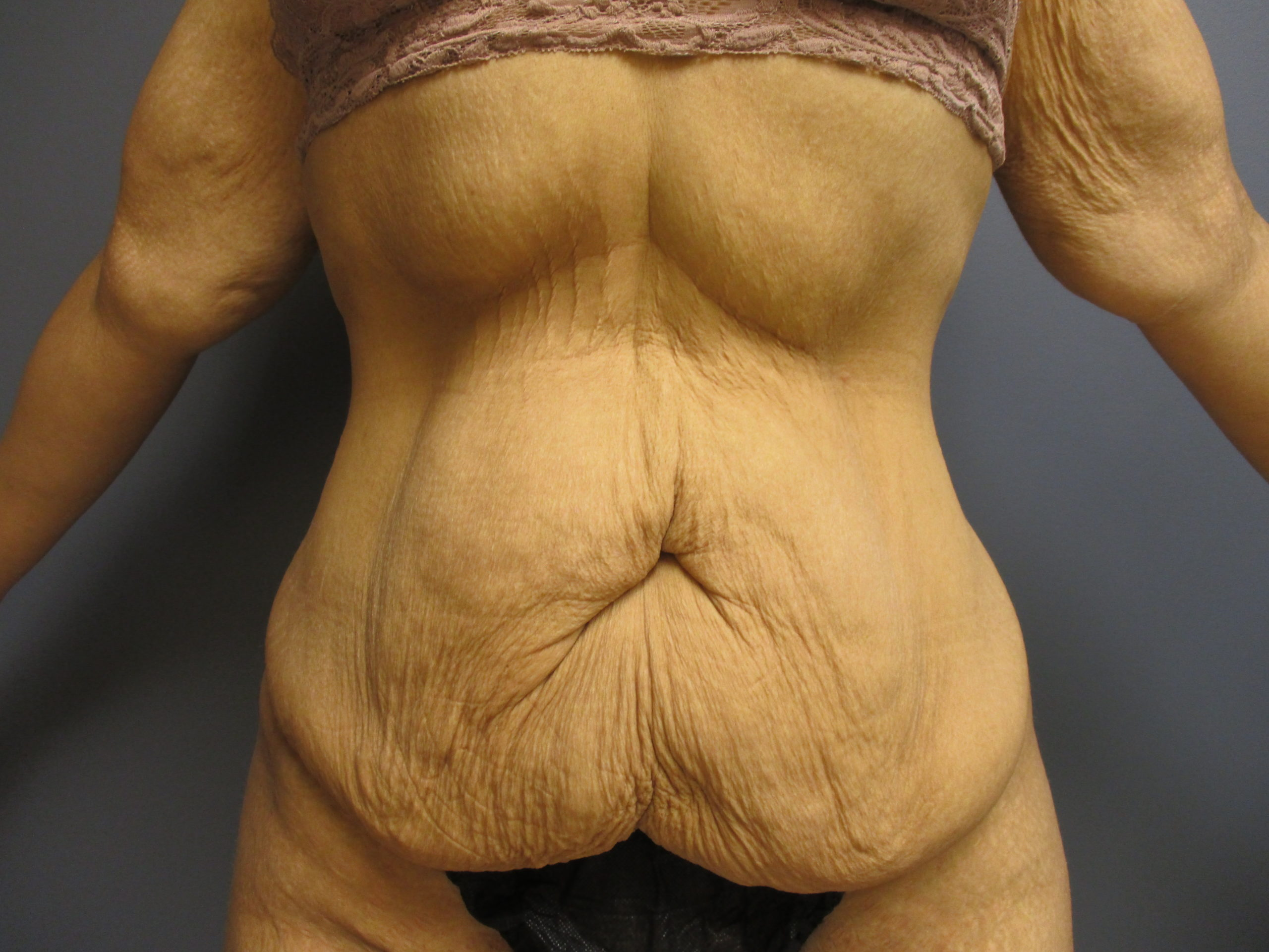 before extended panniculectomy with liposuction