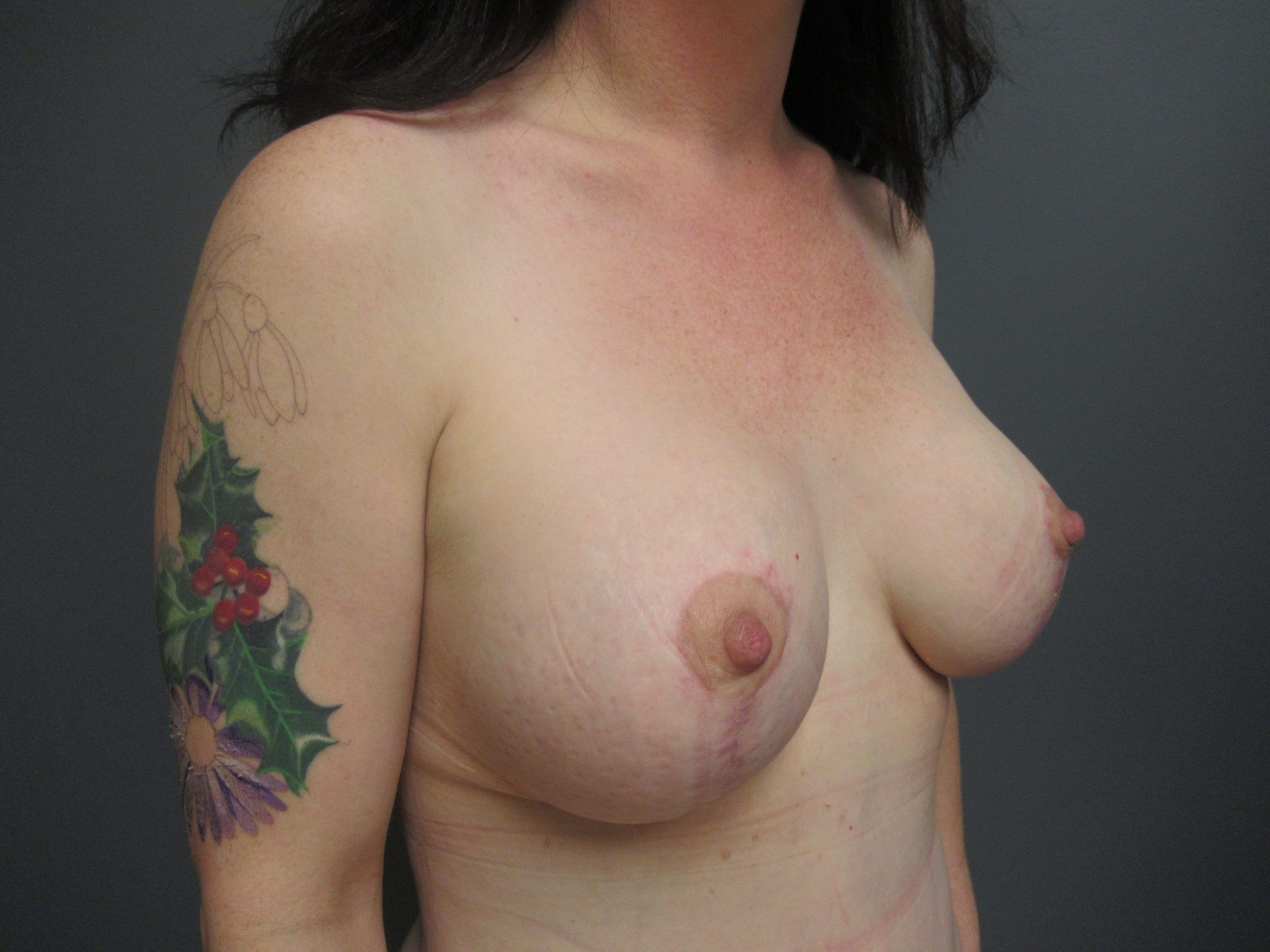 mommy makeover breast augmentation after