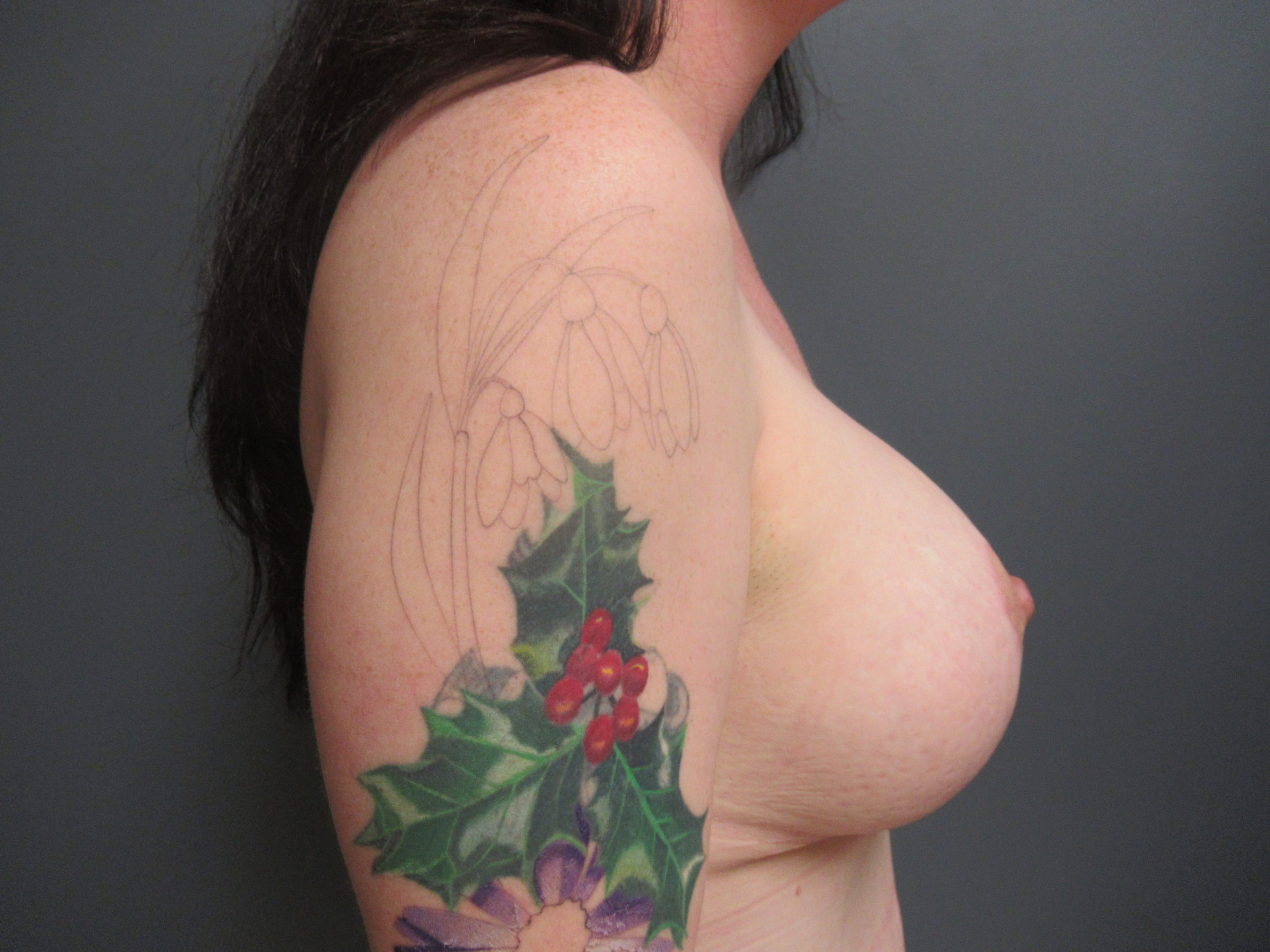 mommy makeover after breast augmentation