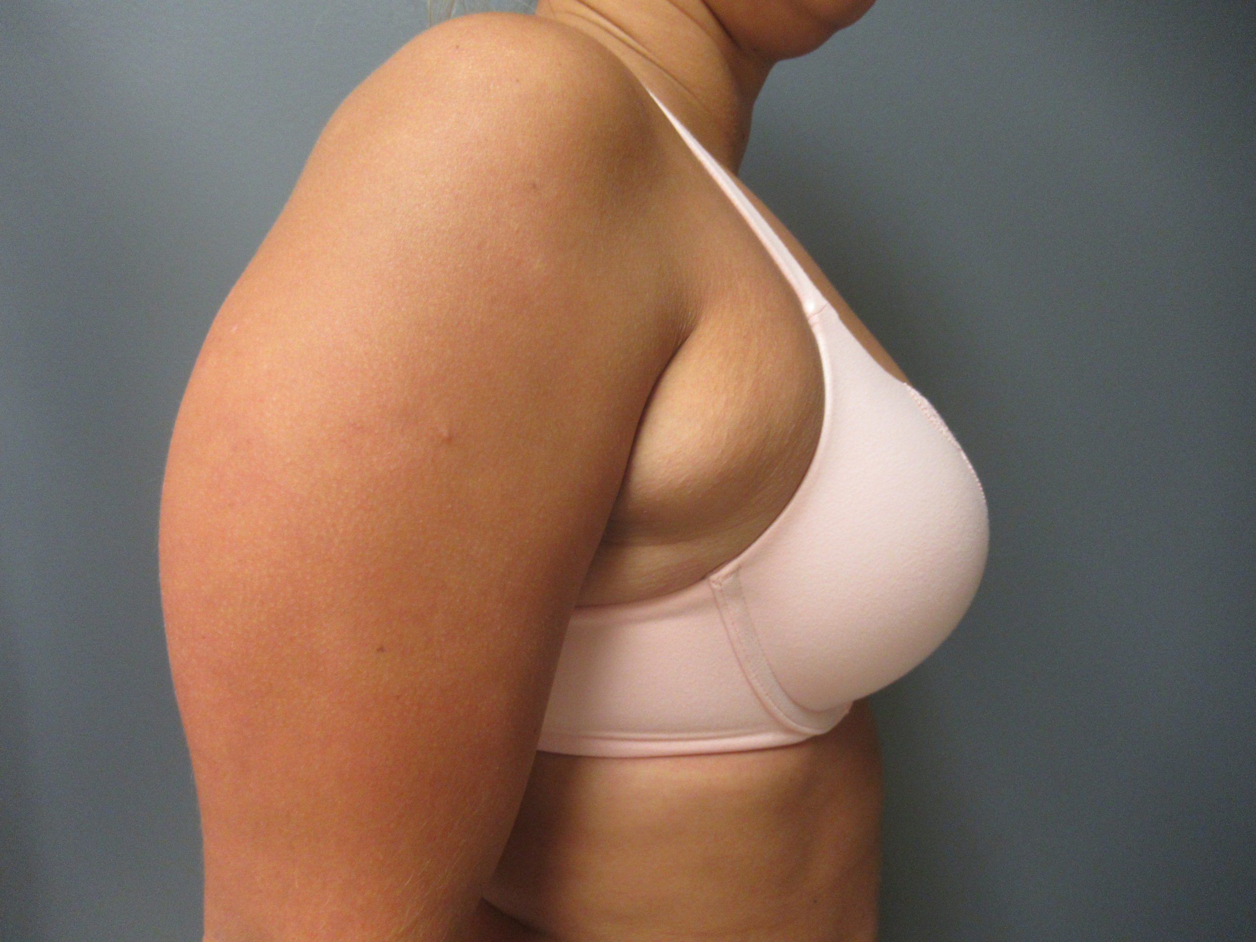 before excess fatty tissue under arms