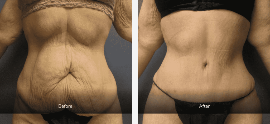 Panniculectomy with Liposuction Gallery