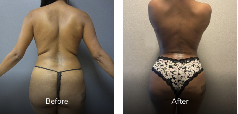 40 Year 142 lbs 5'4 before and after Vaser Liposuction