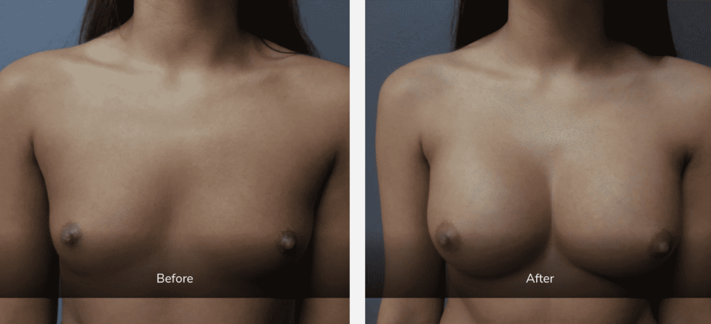 breast cosmetic surgery before and after gallery